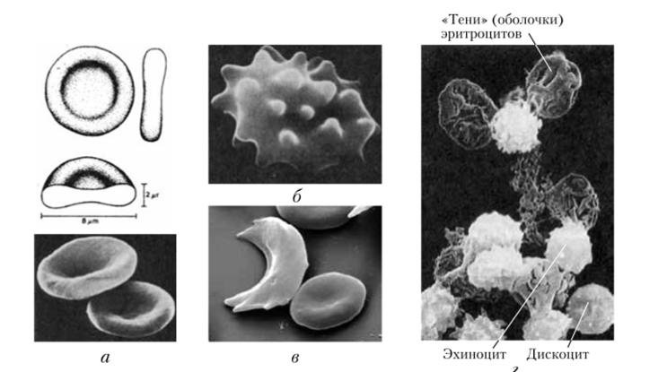 Эритроциты в гипертоническом и гипотоническом растворе ...