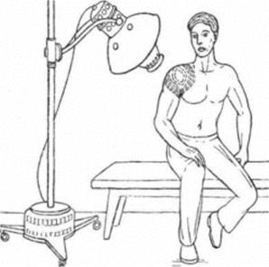 Светотепловое облучение плечевого сустава лампой «Соллюкс»
