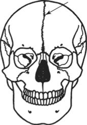 Череп человека с метопическим швом (указан стрелкой)