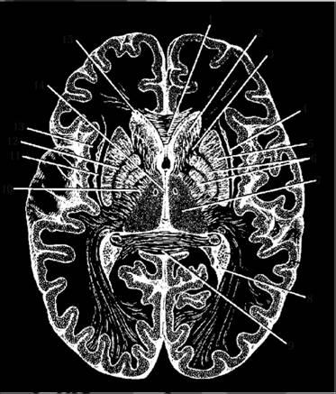 Горизонтальный разрез головного мозга