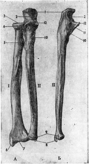 Кости предплечья. А — правые лучевая (I) и локтевая (II) кости в положение супинации Б-, (II) — правая локтевая кость снаружи